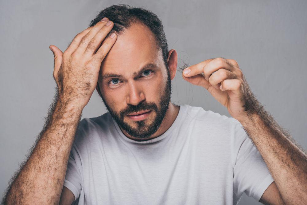 Cabello fino y preocupación por perdida de cabello diaria