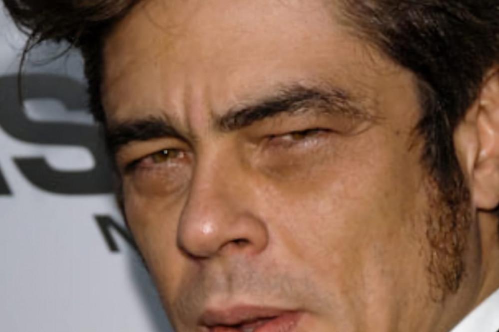 Ojeras de pigmentación o híperpigmentación en contorno de los ojos
