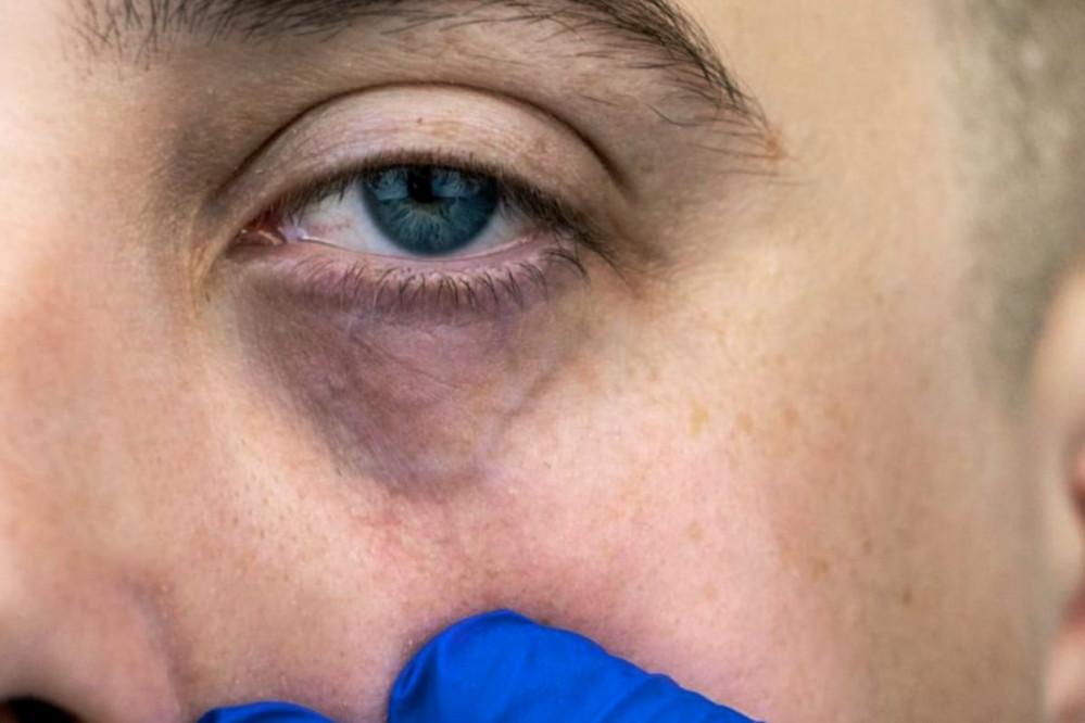 Ojeras vasculares en contorno de los ojos