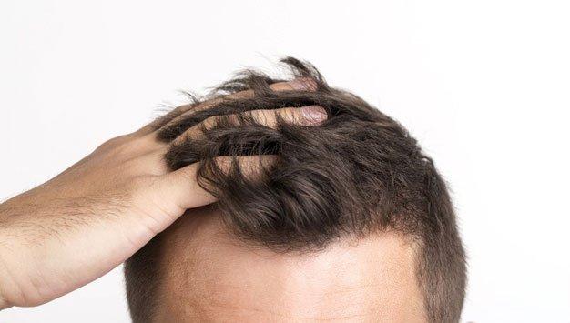 Posible alopecia hereditaria