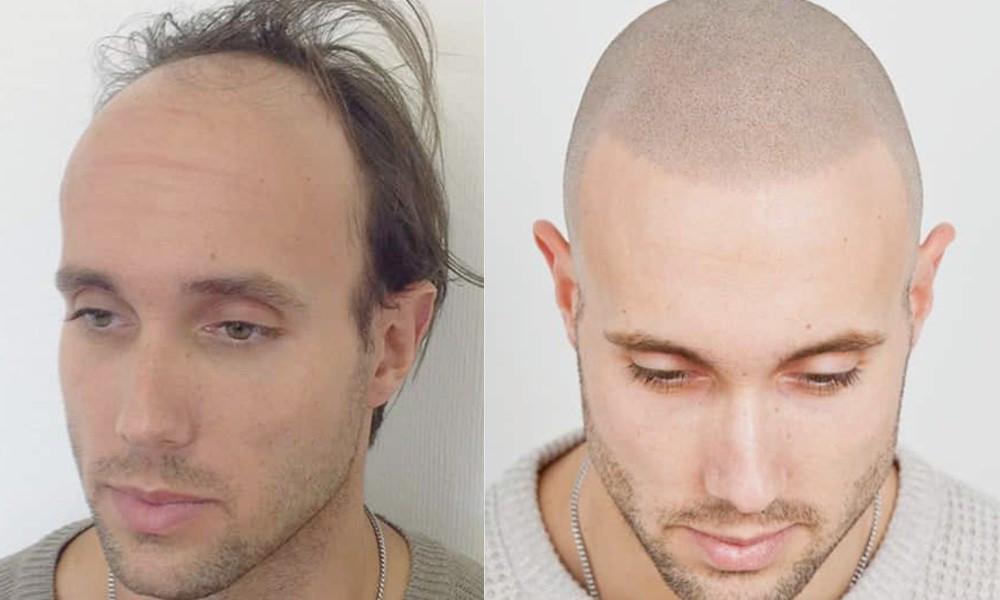 antes y después micropigmentación capilar hombre