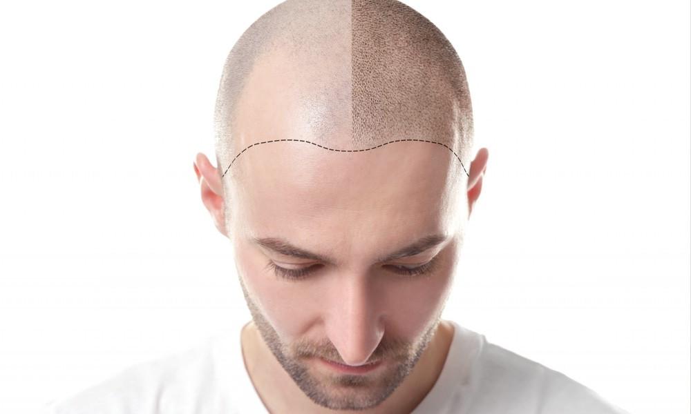 ejemplo de micropigmentación capilar hombre