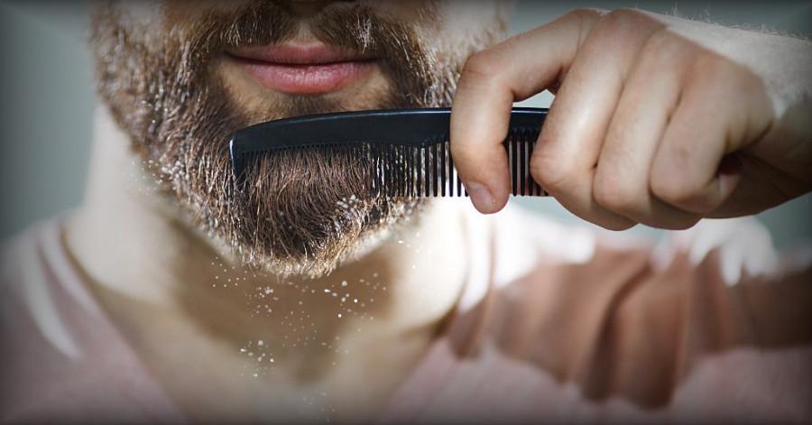 Descamación en forma de caspa blanca en la barba