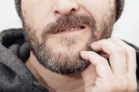 Descamación con zonas enrojecidas tras el afeitado